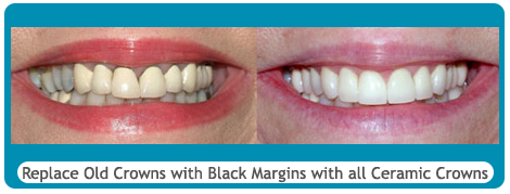 Before and after ceramic crowns