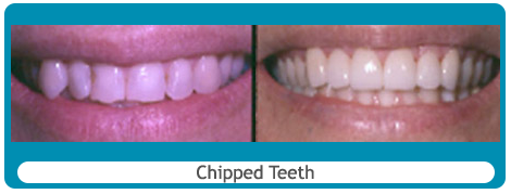 Before and after chipped teeth