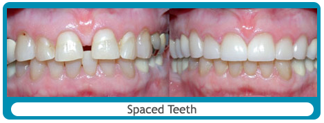 Before and after gapped teeth