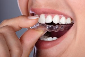 A woman places her Invisalign clear aligners onto her teeth.